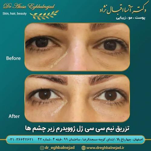 تزریق-ژل-زیر-چشم-2